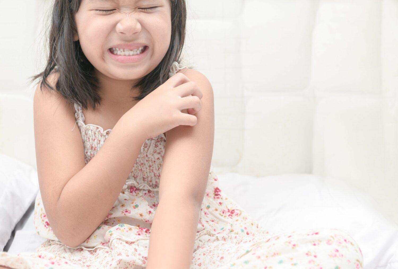 4 Ways To Fight Skin Problems In Children
